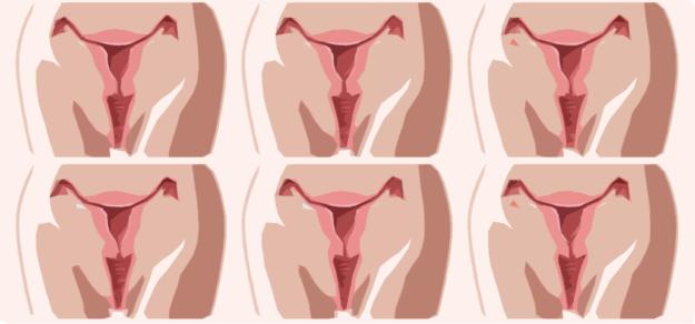 Pastilla para la mañana siguiente: ¿anticonceptiva o abortiva?
